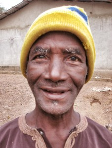 Sidu Tarawallie, age 60. His eyesight was preserved via bilateral Pterygium surgery in February 2012.